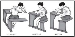 Gangguan atau kelainan pada tulang belakang.