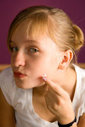 Pimples around the eyes.They are associated with malnutrition, .