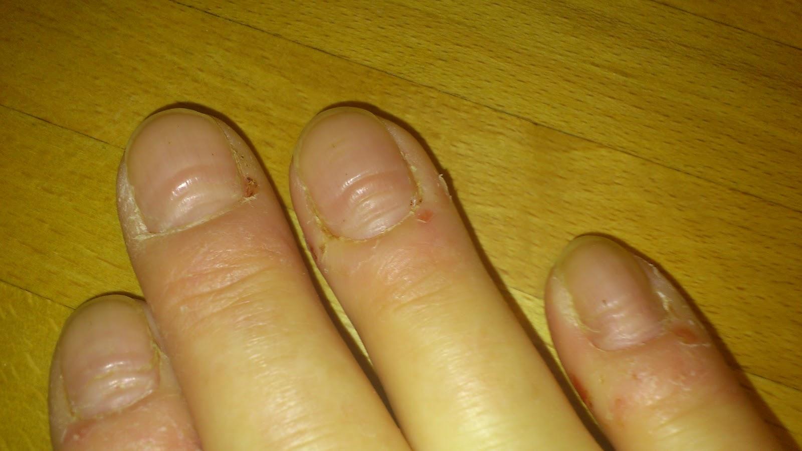 vågiga naglar