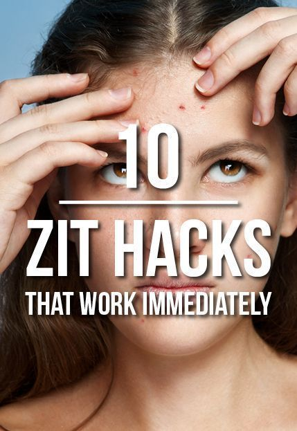 10 At-Home Remedies To Try When Zits Pop Up Out Of Nowhere