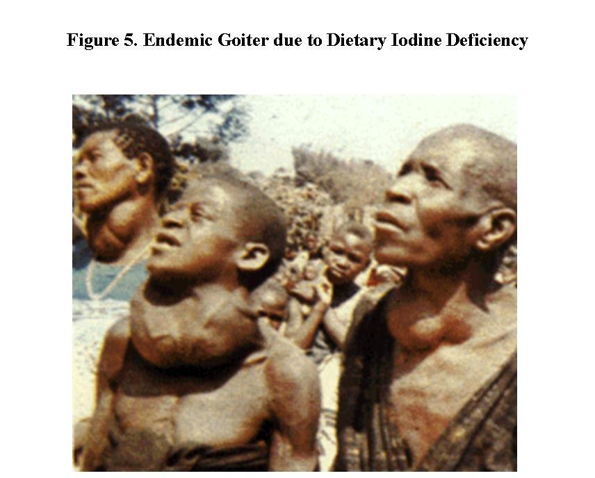 Goiter Iodine Deficiency Causes
