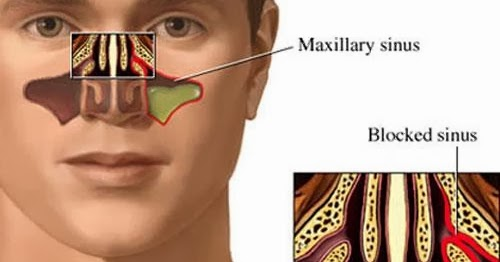 how to clear sinuses naturally