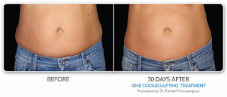 Coolsculpting antes y despues