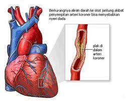 Obat penyakit Jantung Koroner