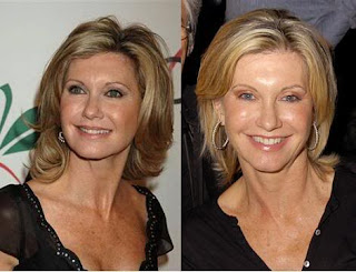 Chatter Busy: Olivia Newton-John Cosmetic Surgery