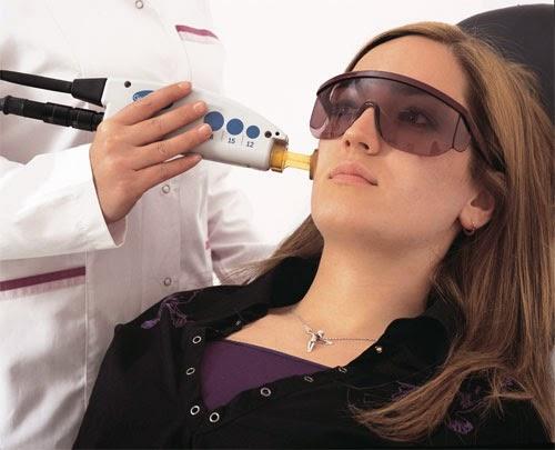 Cara Memutihkan Kulit Wajah Dengan Laser