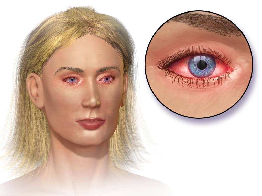 tips mengobati mata merah, pedih, gatal dan berair