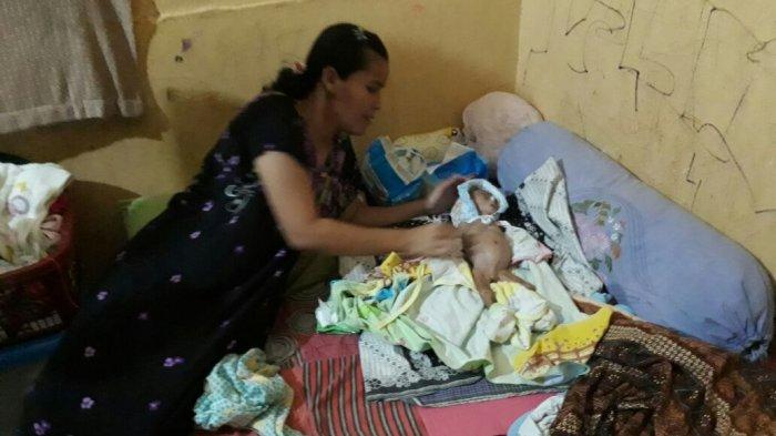Dermawan Dibutuhkan, Bayi 2,5 Bulan Alami Kelainan Jantung
