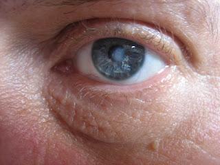Corneal Hydrops The cornea