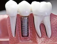 Dent douloureuse après canal radiculaire