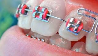 Bahaya Pasang Kawat Gigi Atau Behel Sembarangan
