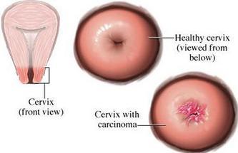 Mencegah Penyakit Kanker Serviks dan Osteoporosis