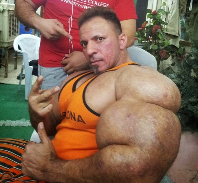 This Guy Uses Way Too Much Synthol ~ Damn Cool Pictures