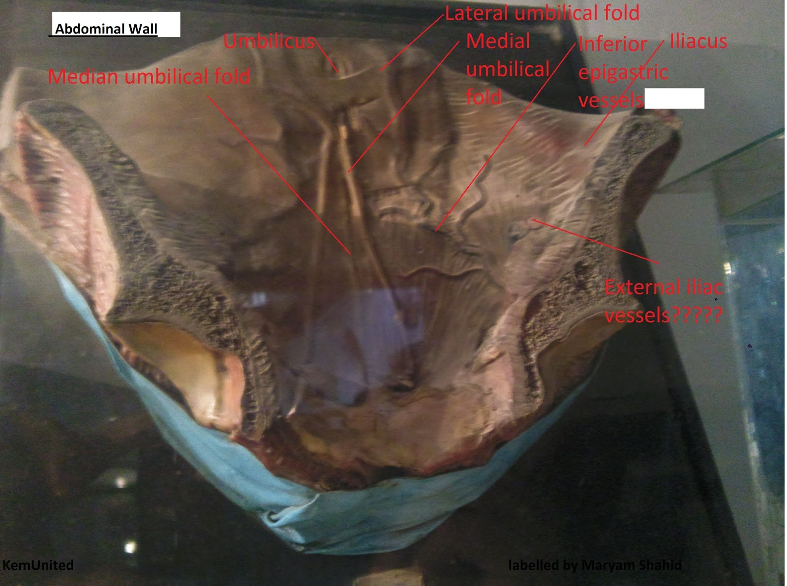 Gross anatomy abdomen