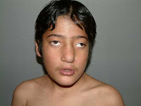 Find, Digeorge syndrome facial features