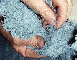 Asbestos-Poisoning