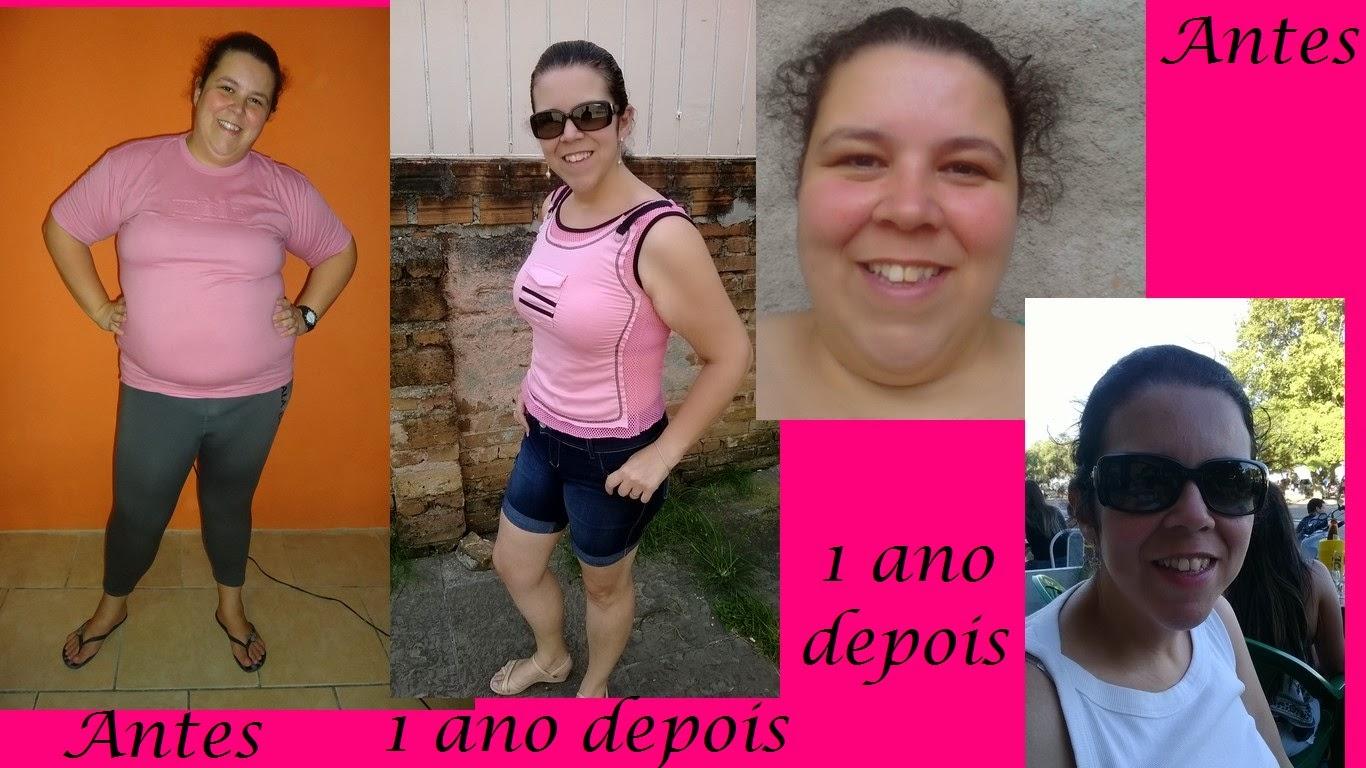 um ano de bariatrica gastroplastia antes e depois