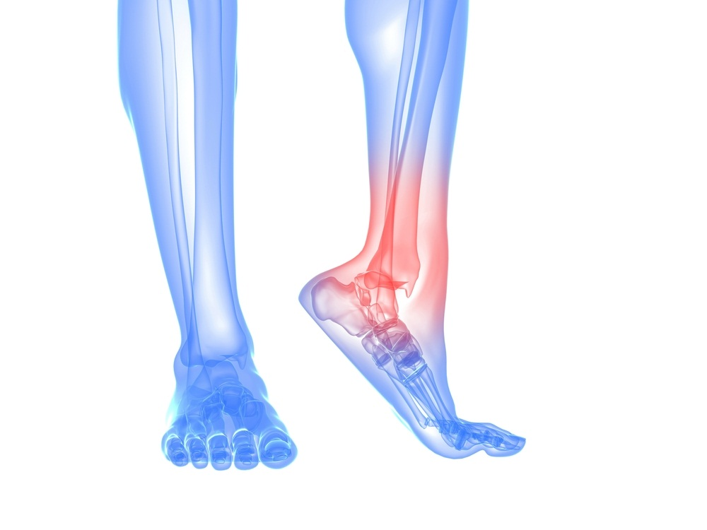 Sore Ankles After Running Treatment