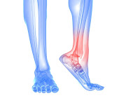 Ankle pain Prevention