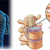 Aprenda o Tratamento Definitivo para Hérnia de Disco lombar