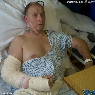 Salvo su vida gracias a que un ladron le rompio el brazo