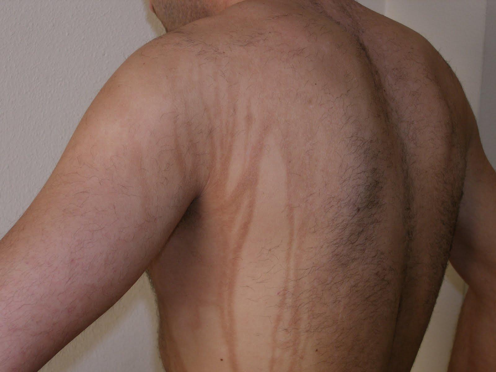 Monoklonalnye los preparados de la psoriasis