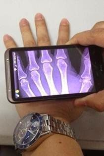 Xray Scan