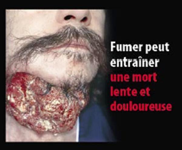 Les mfaits du tabagisme sur la - Arrter de fumer