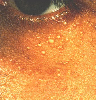 Squamous Cell Carcinoma in Situ - Pictures, Treatment ...
