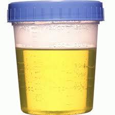 air kencing kuning terang