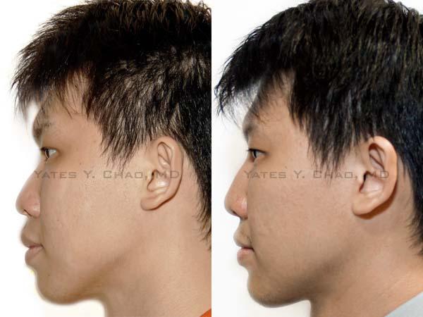 鼻部塑形, 下巴塑形, 晶亮瓷, 趙彥宇, Radiesse