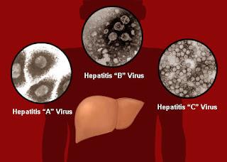 Penyakit Liver (Hepatitis) Gejala Dan Penyebabnya