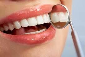 perawatan gigi putih maksimal
