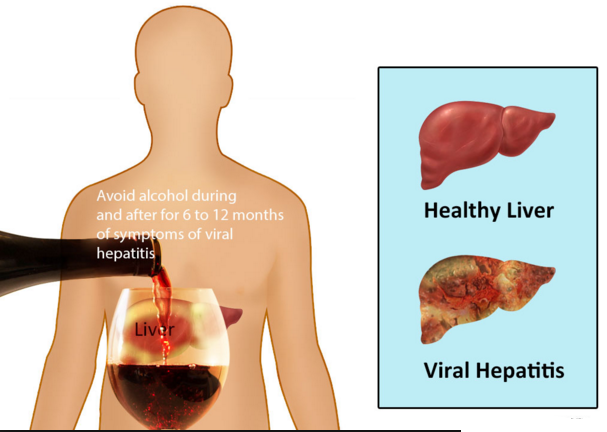 Hepatitis ke Karan Lakshan or Deshi Ilaaj