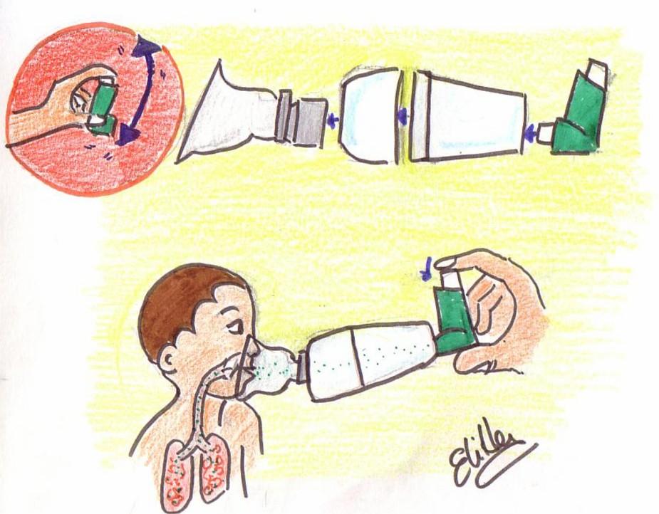 aerosol nasal con corticosteroides