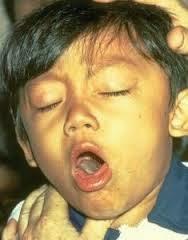 Obat Untuk Penyakit Batuk Rejan