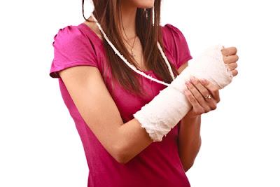 Yang Harus Dilakukan Jika patah tulang akibat Kecelakaan