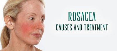 Rosacea Treatments, Diagnosis, Causes, Symptoms, Prevention, Natural Remedies