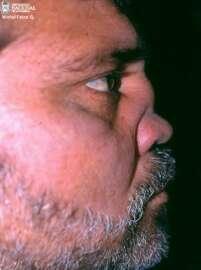 El dolor en los riñones a la derecha detrás a los hombres da en el pie
