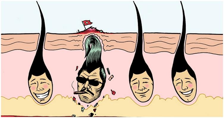 удаление волос навсегда методы