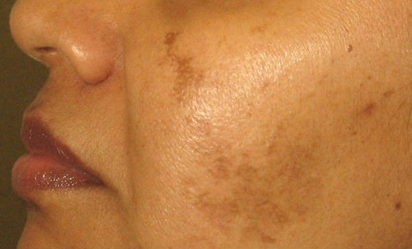 Get Rid of Freckles, Stains and Hyperpigmentation by Using This Natural Recipe Which Contains 2 Ingredients