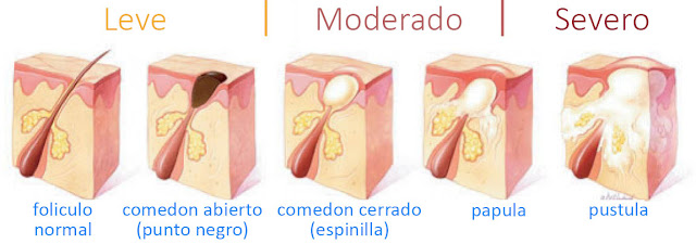 Tipos de granos y acne