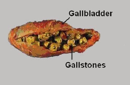 gallstones: causes, symptoms, diagnosis and treatment | tips, Human Body