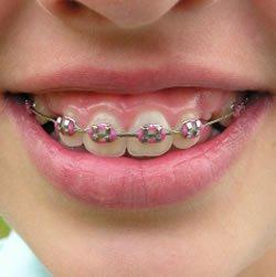 Saat ini banyak orang yang menggunakan behel atau kawat gigi hanya ...