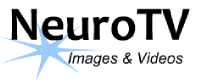 NeuroTV
