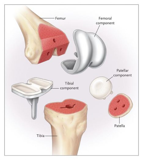 March 2012 | KNEE JOINT THERAPY DEVICE