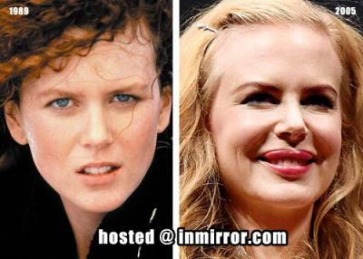 Nicole Kidman Plastic Surgery Before And After
