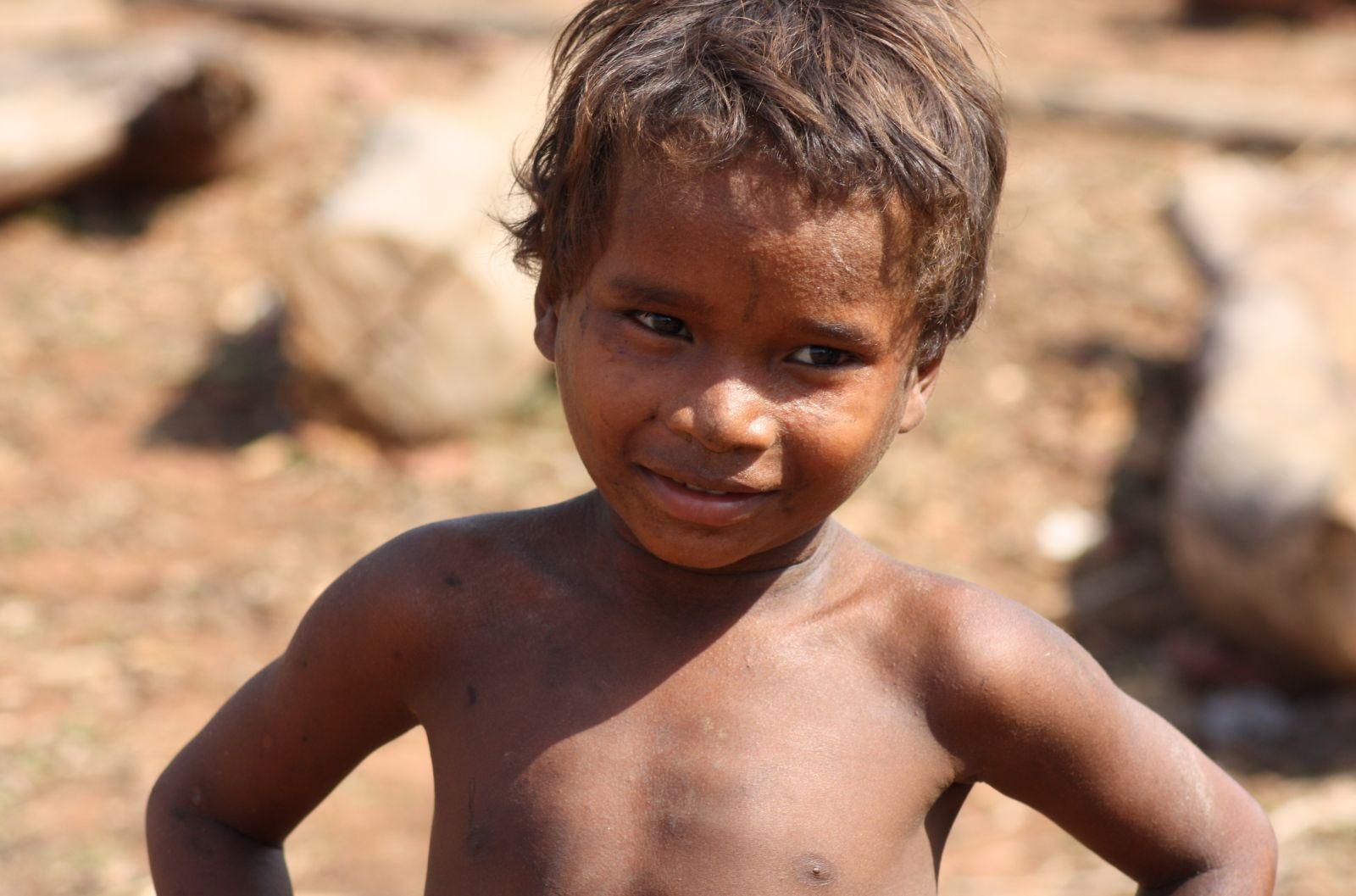 management of malnutrition in children dr tariq saeed