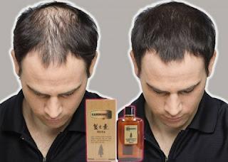 Obat Penumbuh Rambut Kaminomoto Mengatasi Kebotakan