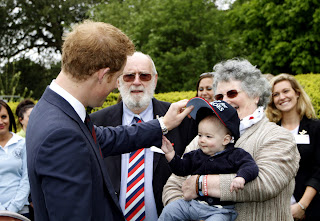 prince harry hair loss